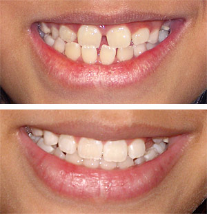 Teeth, before and after braces